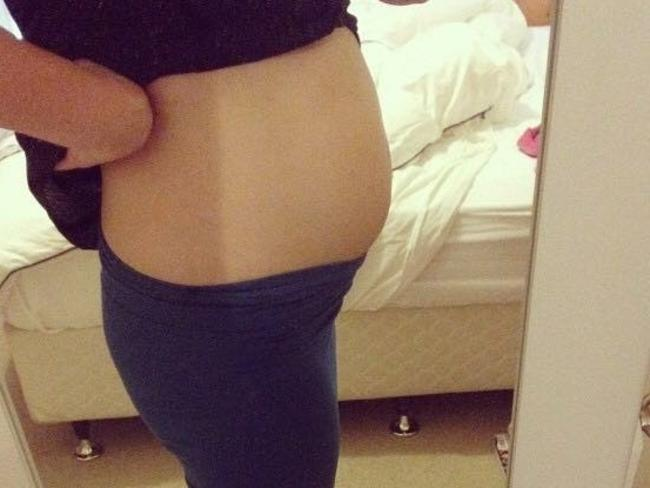 Sherie's bloated stomach was a symptom of bowel cancer.