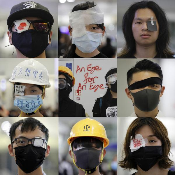 Over the past week, protesters have worn eyepatches in solidarity with a woman who lost her eye to a rubber bullet.