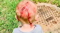 Mum's warning after toddler attacked at park