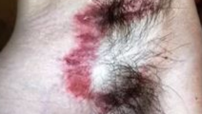 Michael Smith posted a video on YouTube, showing his painful skin eruption.