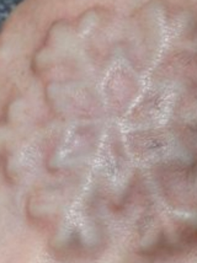 A woman died after a plastic snowflake was implanted under her skin.