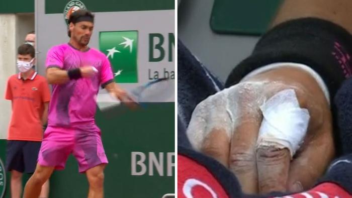 Fabio Fognini busts his hand open
