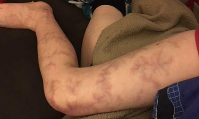 The skin on Adam's knee has a mottled appearance. Image: Love What Matters