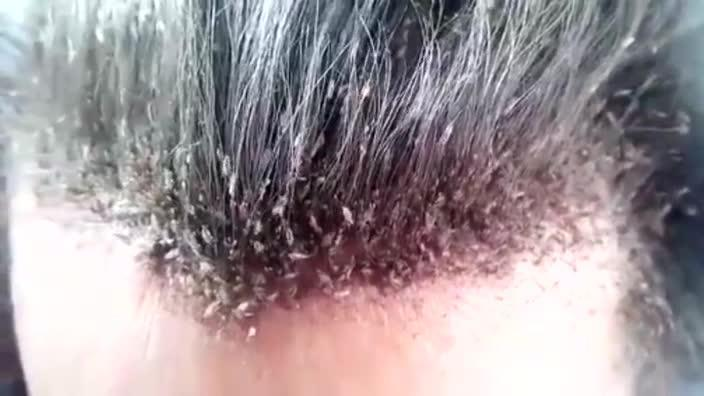The worst case of hair lice in the word