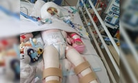 Girl, 2, burnt in kitchen after baby gate left open