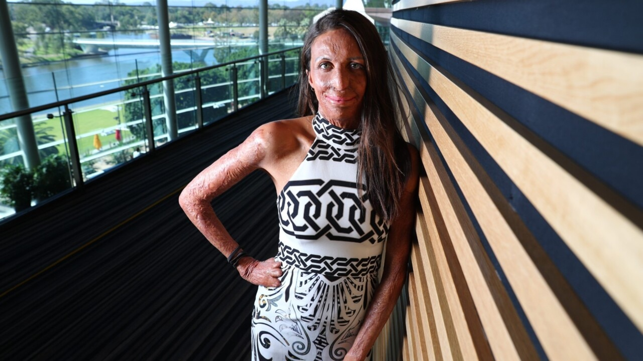Turia Pitt's recovery was paved with a focus on 'small steps, gratitude and service'