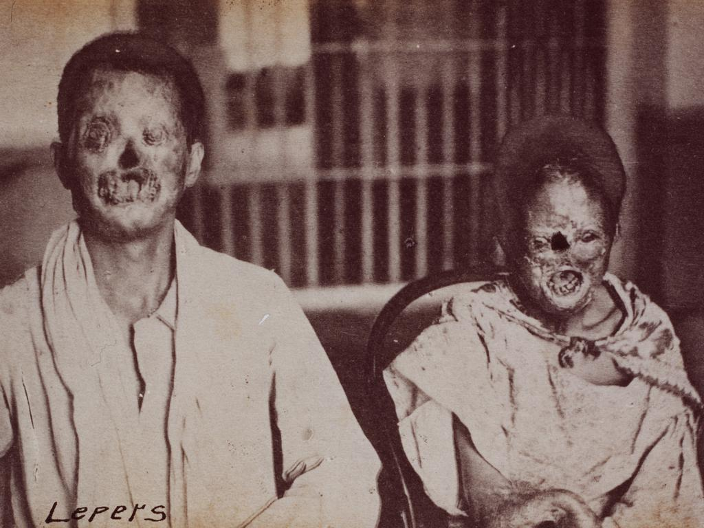 Two grossly disfigured patients with leprosy in China in the late 1800s. Picture: Michael Maslan//Getty