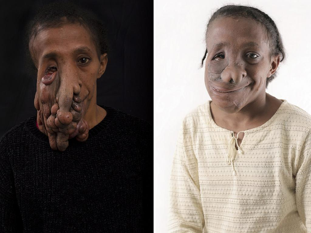 Natalia Aperasay before and after her life changing surgery. Picture: Luke Fuda / South Western Sydney Local Health District