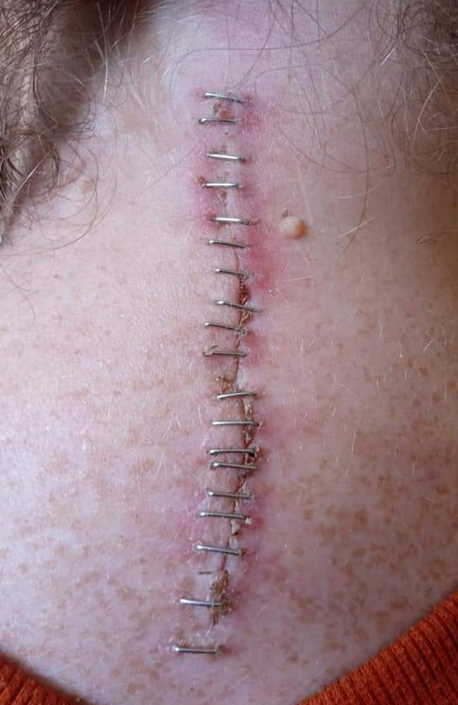 She had suffered a spinal cord injury across several vertebrae at the top of her spine. She had an operation in September 2019 to put titanium rods in her neck (pictured two weeks after). Picture: Kennedy News