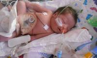 'My baby's intestines were outside of her body'
