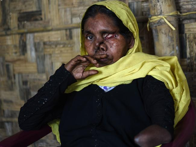 Rohingya refugee Juhara, whose name has been changed to protect her identity, ran for her life but was hunted down and attacked. Her husband and parents were killed. Picture: Nick Perry/AFP