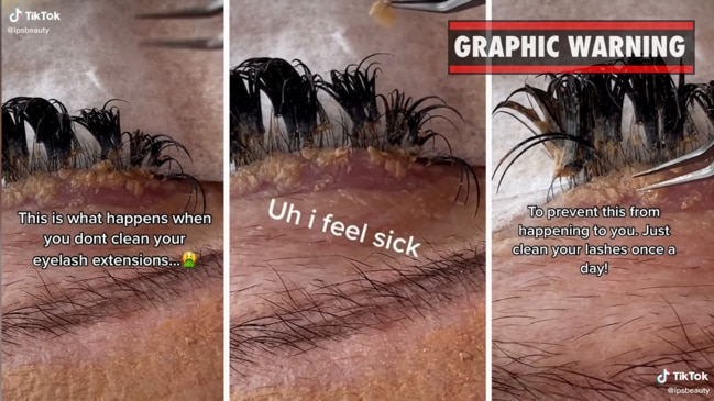 Gross warning about eyelash extensions