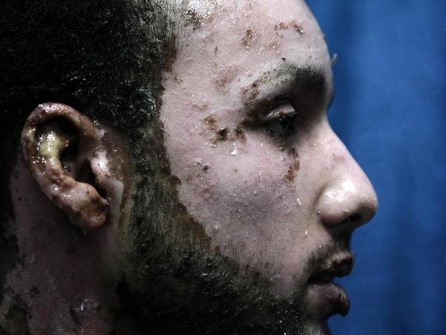 A man suffering from white phosphorus burns in 2009.