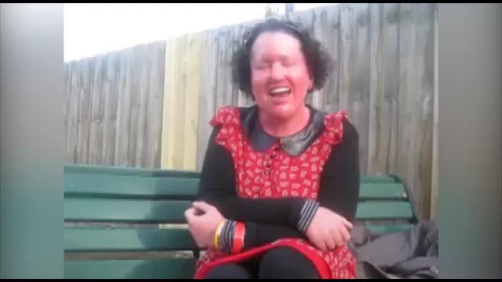 The inspiring Carly Findlay