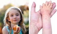 The eczema diet that could cure your kid's itchy skin