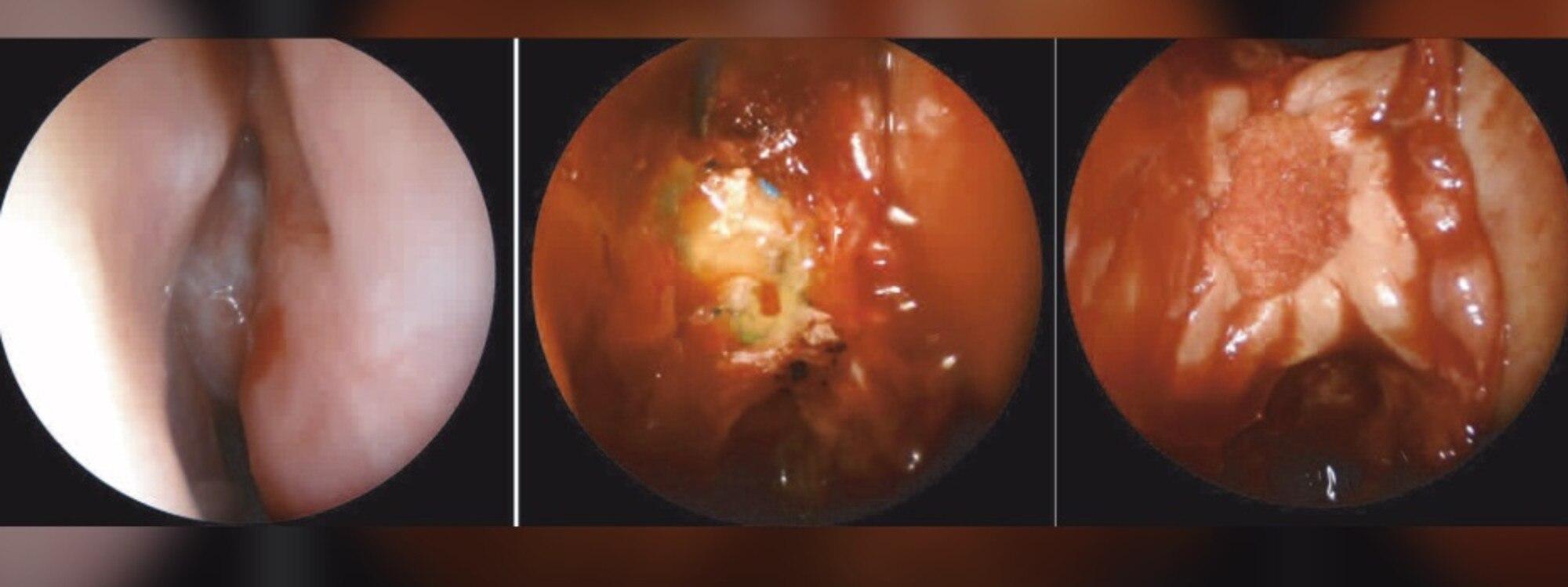 COVID-19 nasal swab test caused brain fluid to leak from ...