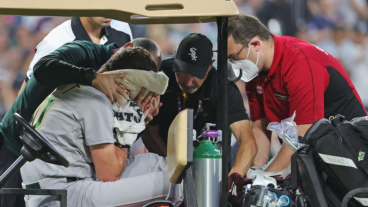 Chris Bassitt is recovering after his nasty hit.