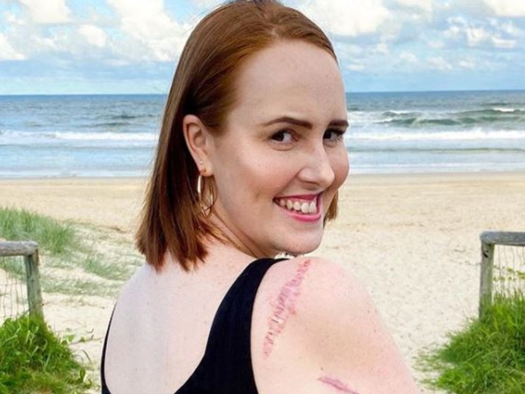 Courtney is currently cancer free but warns others to regularly get their skin checked after the recent SpotChecker Australian Skin Safety Report revealed 35 per cent of Aussies have never had their skin checked. Picture: Supplied