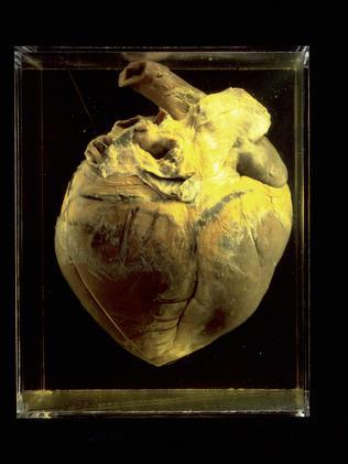 Phar Lap�s preserved heart 1932 - From the Landmarks book