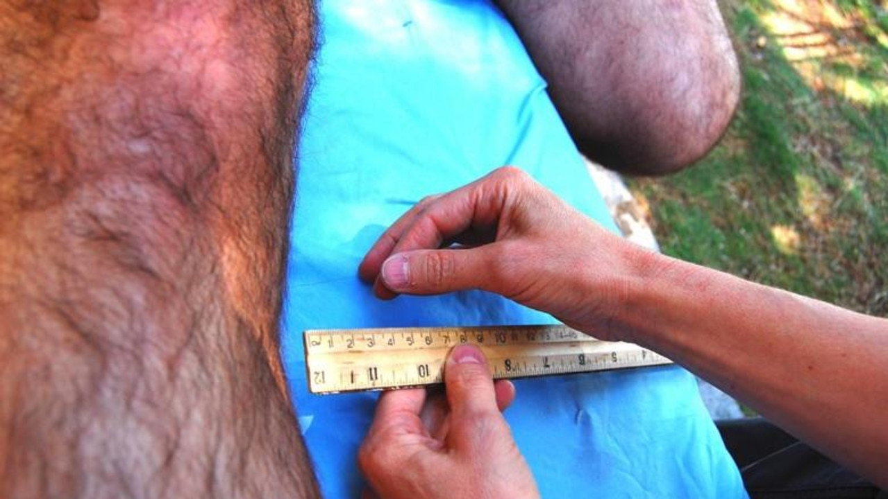 Jason Allen's quite hairy leg, including his 22.
