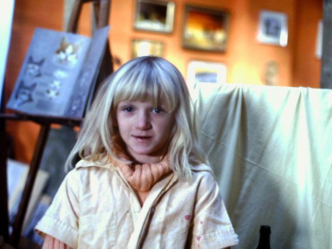 "Congenital heart disease survivor Jeanette Manson as a ""blue"" child with cyanosis."