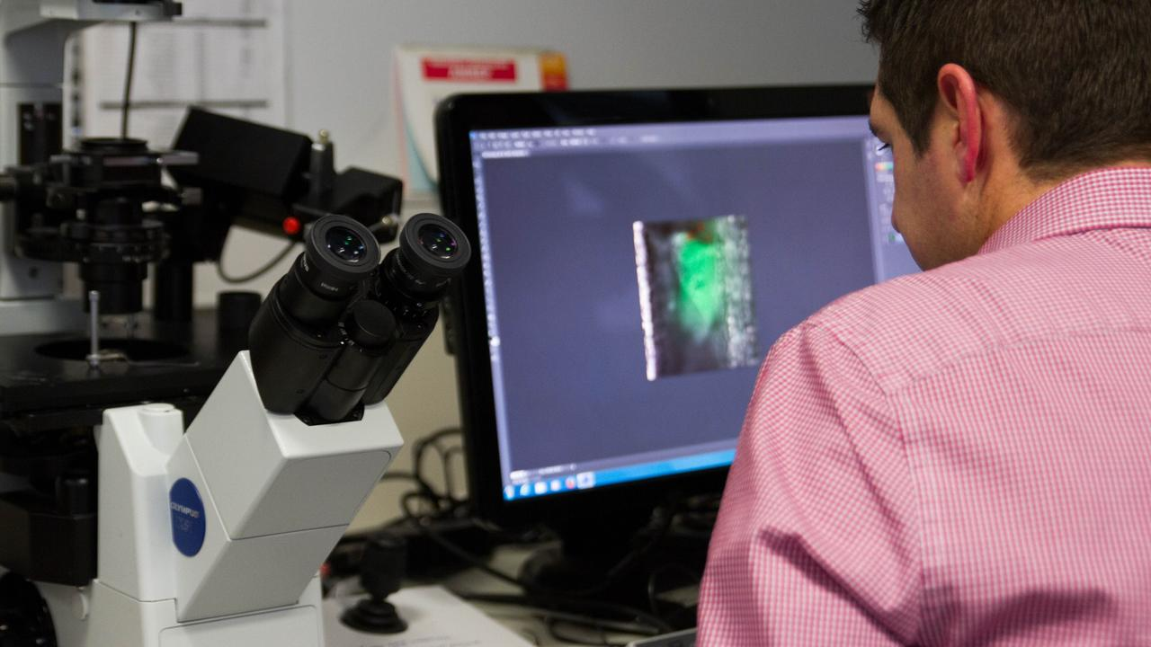 Associate Professor Justin Hamilton inspects a microscopic image of a blood clot as part of his work at the Australian Centre for Blood Diseases. Picture: supplied