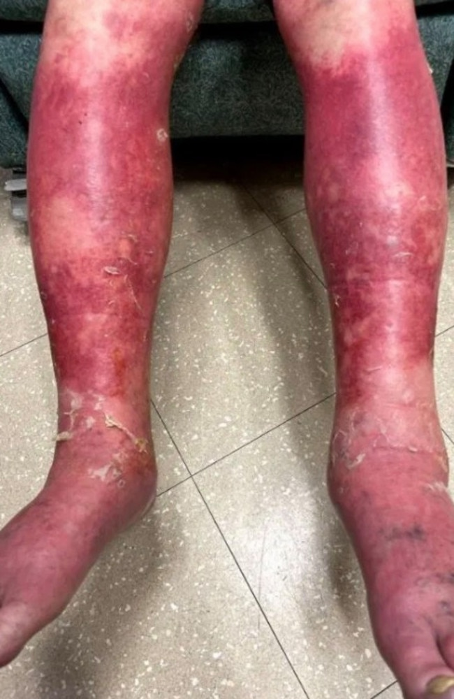 At its worst, the rash left the 74-year-old's legs and hands unrecognisable. Picture: Dr. FNU Nutan with VCU Health