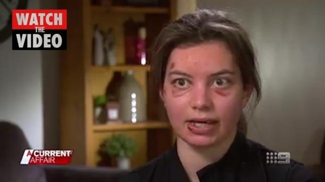 Woman faces hefty medical bills after cyclist accident (ACA)